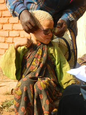 A child with albinism